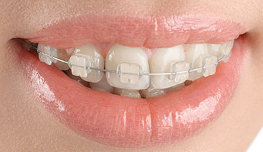 dental ceramic braces