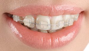 Ceramic Braces in Hyderabad