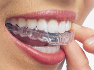 Invisalign in Hyderabad, India