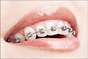 metal-dental-braces