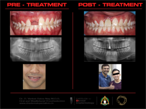 UPPER FRONT SINGLE MISSING TOOTH DONE WITH TTPHIL PROTOCOL. PERMANENT TEETH IN 3 DAYS.