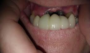 gum shrinkage in cement retained implant restorations