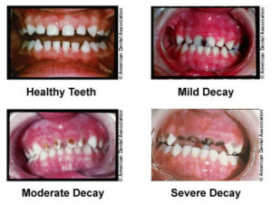 Baby Bottle Tooth Decay The Dental Specialists