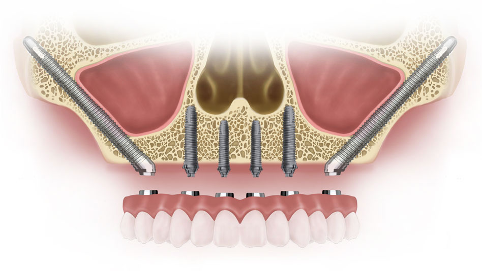 Zygomatic Implants - Zygomatic Implants Specialists in Hyderbad, India