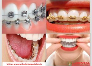 Types of braces the dental specialists