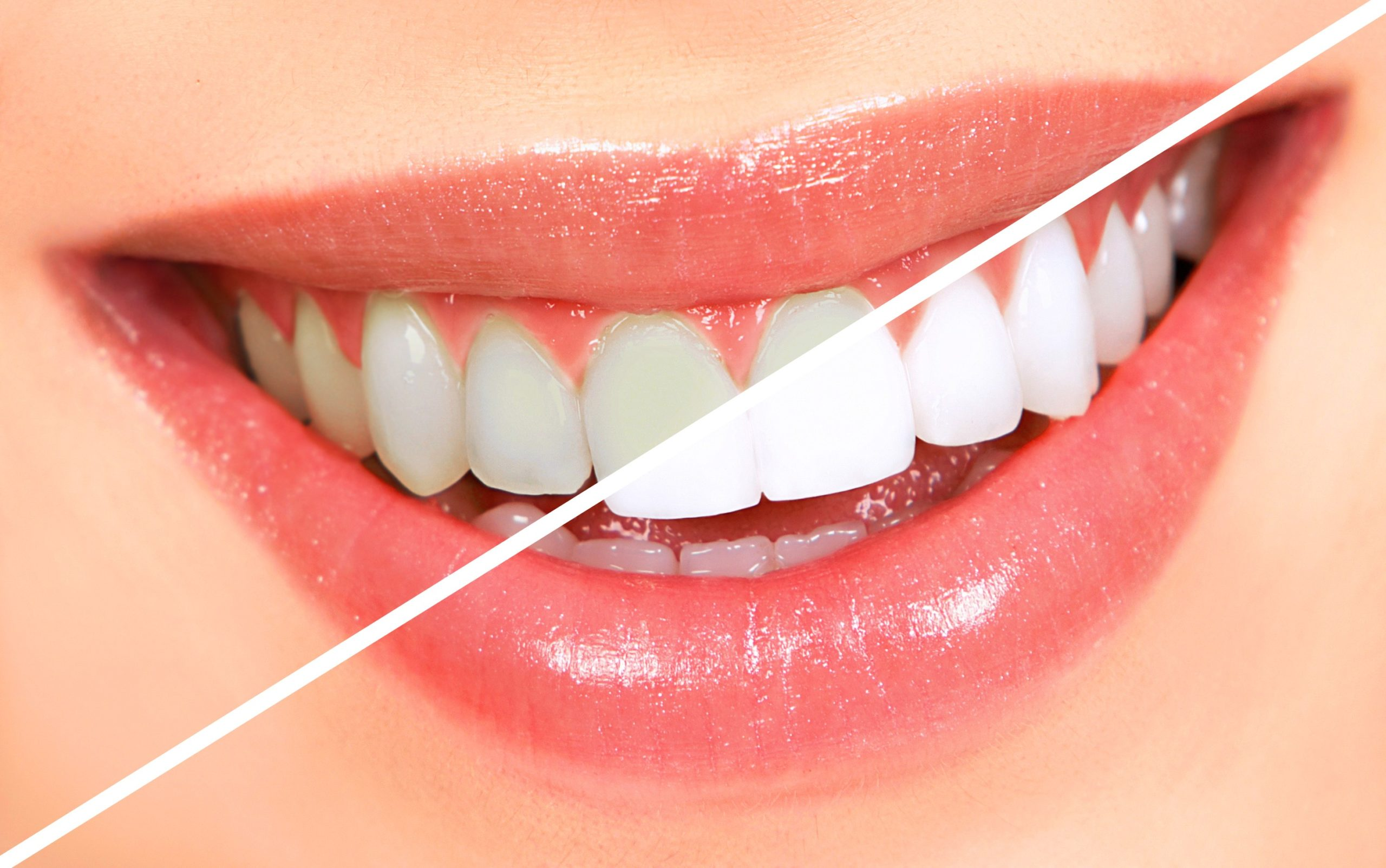 Teeth Whitening - Options Available