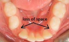 loss of space in baby teeth
