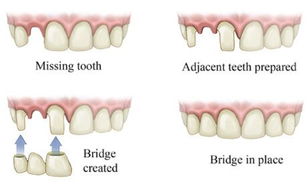 tooth bridge used for tooth replacement