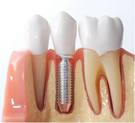 dental implant for tooth replacement