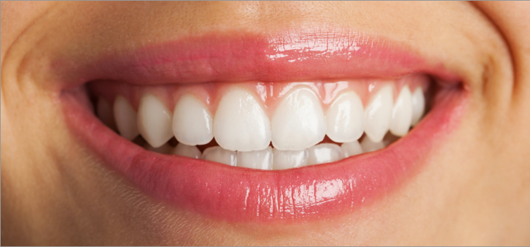 getting rid of black gums