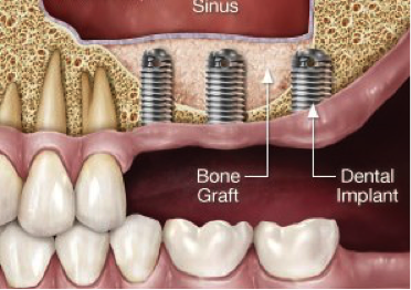 Dental Implants with Sinus Lift