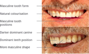 Smile Correction for men