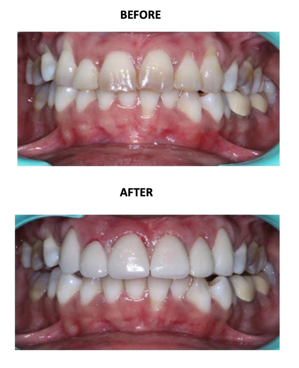 Veneers for Discolored Teeth
