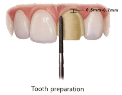 preparing for Dental Veneer