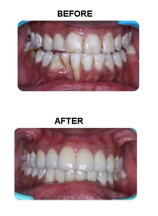 smile design with dental veneer cost