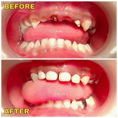 before-after-zirconia-cap1