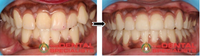 cross bite fixed with aligners