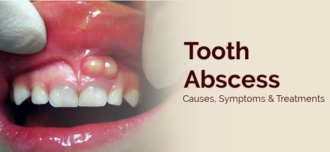 tooth abscess treatment