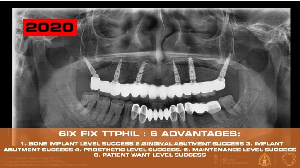 ttphil implants